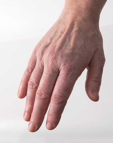 Viscoderm Hands - Before